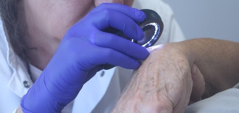 Consulta de Teledermatología