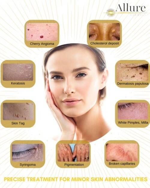 THERMOCOAGULATION - Removal of Three Skin Tag, Broken Capillaries, SB, DPN, Ruby Point, or Milias