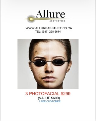 3 PHOTOFACIAL TREATMENTS PACKAGE