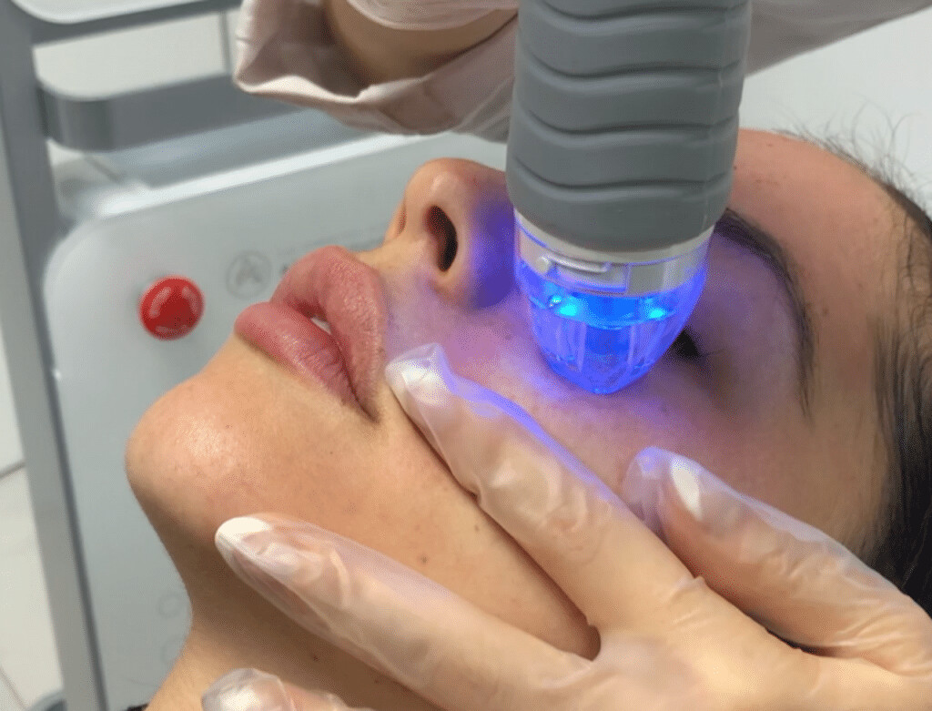 Virtue RF Micro-Needling Rejuvenation Treatment