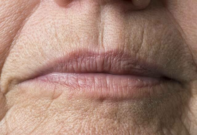 Ultherapy Lip Lines