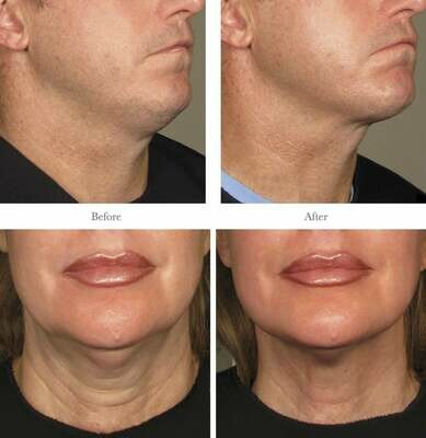 Ultherapy Jawline or Neck or Midface