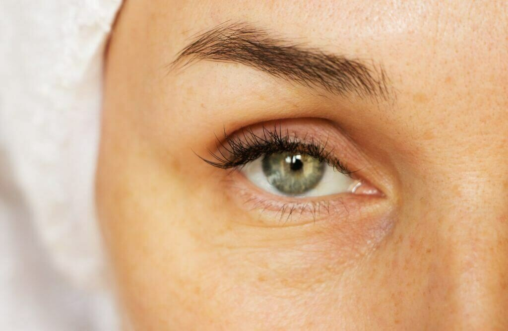 Ultherapy Full Eye Rejuvenation (Brow Lift, Crows Feet & Under-eye)