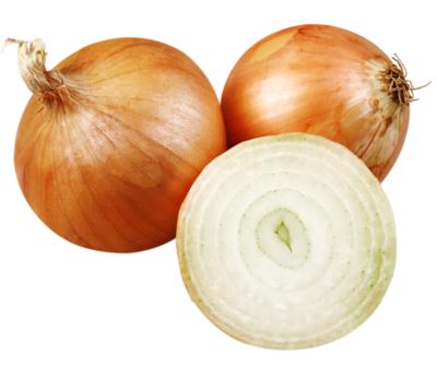 10lb Bag Onions