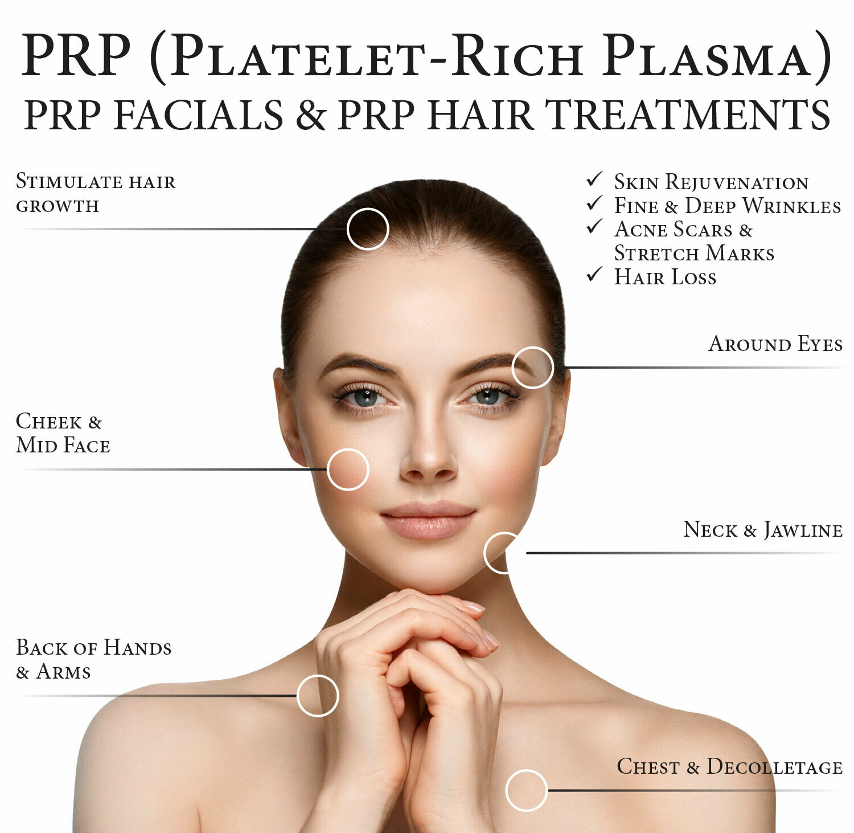 PRP- Platelets Reach Plasma