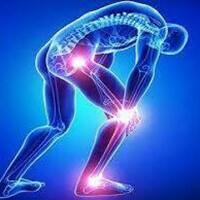 關節退行性變 Joint Degeneration (Arthritis)