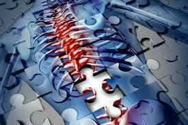 強直性脊椎炎 Ankylosing Spondylitis
