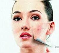 嚴重暗瘡 / Severe Acne