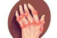 類風濕性關節炎 / Rheumatoid Arthritis (RA)
