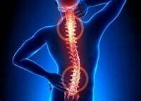 強直性脊椎炎 / Ankylosing Spondylitis