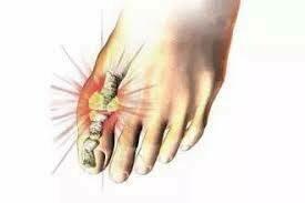 尿酸關節痛 / Uric Acid Arthralgia