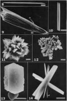 草酸鈣結晶 / Calcium Oxalate Crystal