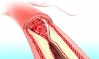 尿酸冠狀動脈鈣化 / Uric Acid Coronary Calcification