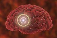 動脈血管硬化 / Arteriosclerosis