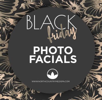 Photo Facials