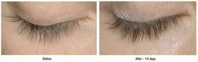 Advanced Eyelash Growth Serum - Brand MD