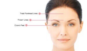 Antiwrinkle Treatment Voucher 2 Areas