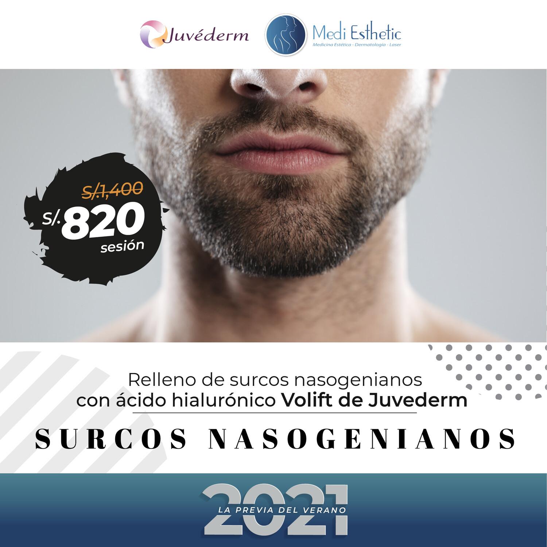 Surcos Nasogenianos - Hialurónico Volift