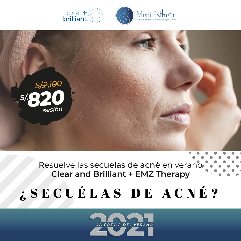 Secuelas de acné en verano