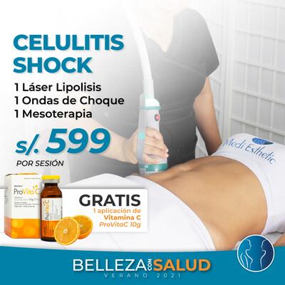 ¡Celulitis SHOCK!
