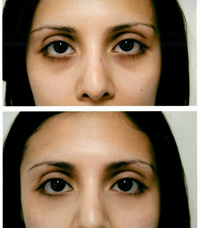 Carboxy Therapy - Eyes