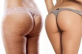 QWO Cellulite Treatment ( 3 Treatments) ** Restriction apply . .see below)