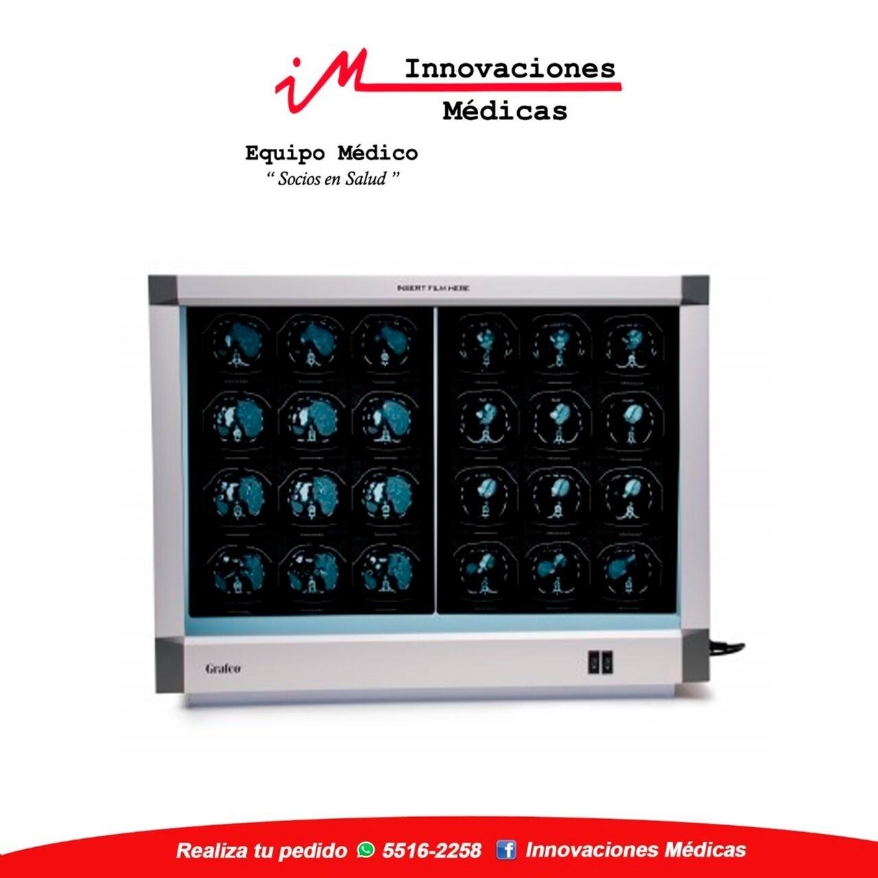 """Negatoscopio de 2 cuerpos de 14"""" X 17"""""""