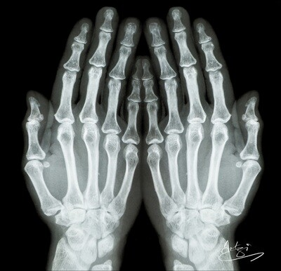 X-ray Hands Greeting Card