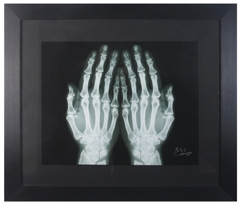 Hands of Prayer X-ray in Black Frame