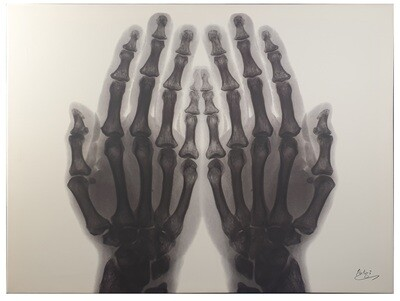 Dua Hands X-ray Art Original Giclee Canvas