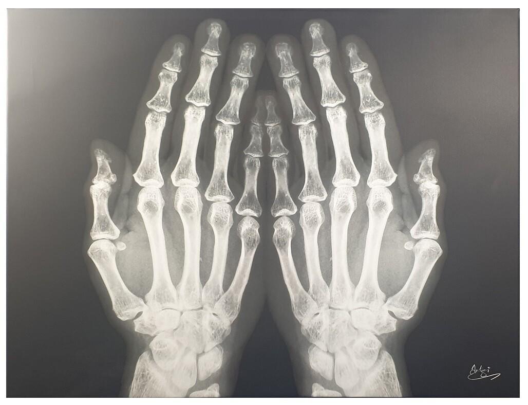 Dua Hands X-ray Art Original Giclee Canvas