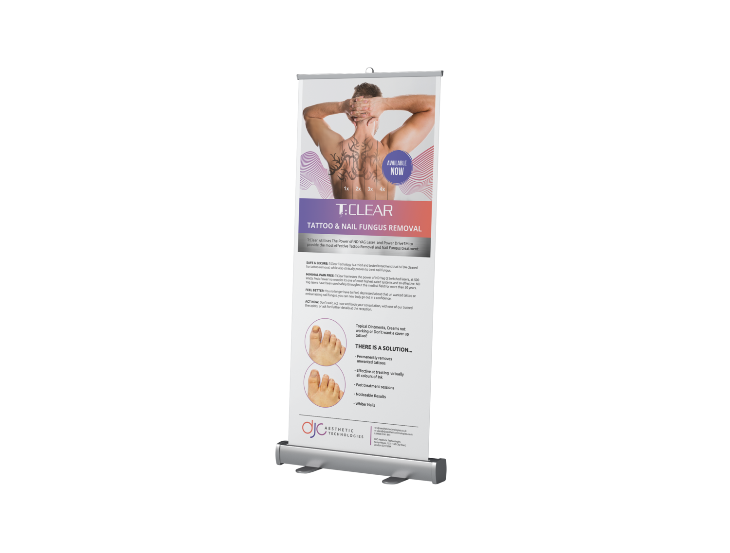 T:Clear Tattoo Removal - Roller Banner