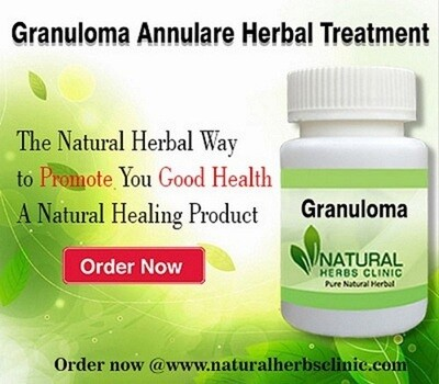 Use Natural Remedies for Granuloma Annulare to Get Rid of it
