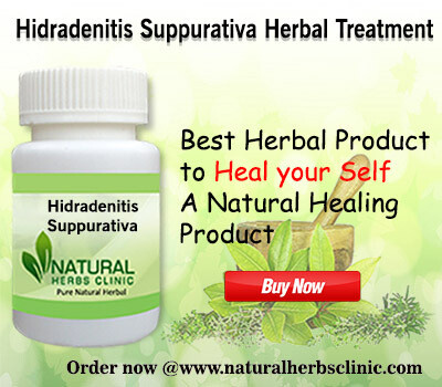 Make Use of Given 10 Natural Remedies for Hidradenitis Suppurativa