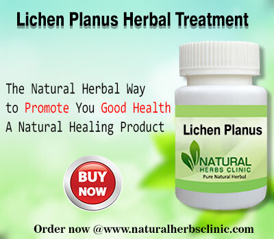 Natural Remedies for Lichen Planus: Very Key in Reduce Skin Swelling