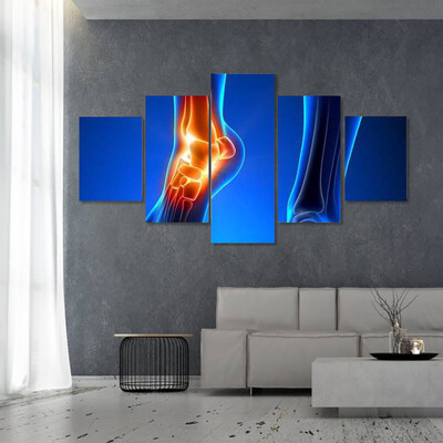 Ankle Pain Detail Multi Canvas Print Wall Art