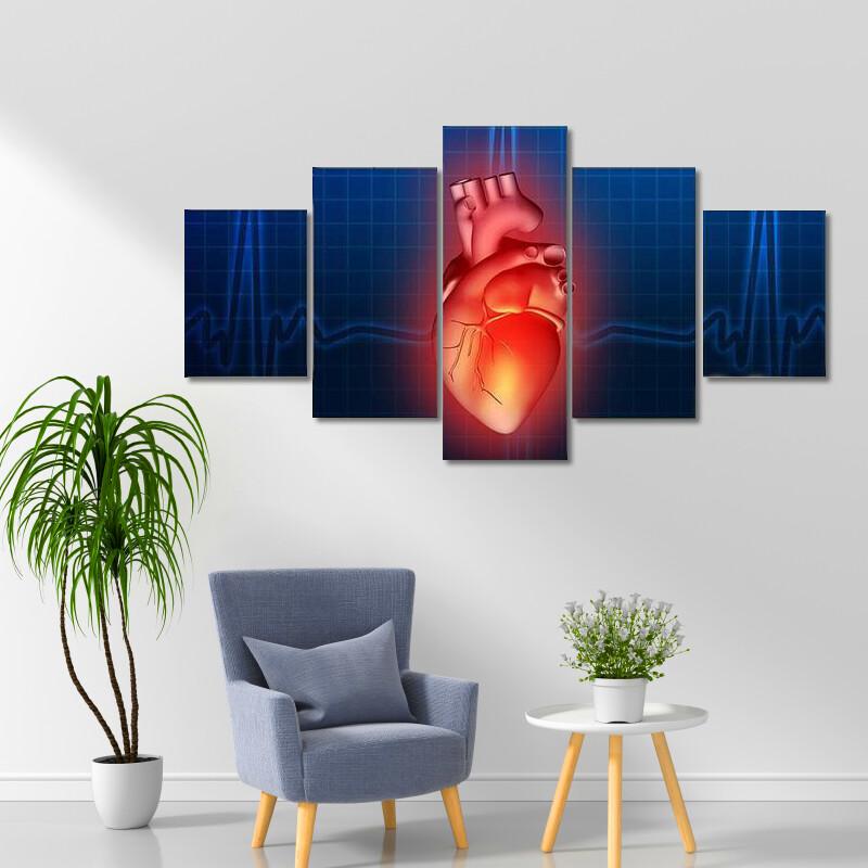 Heart Disease Illustration Multi Canvas Print Wall Art