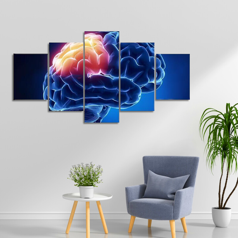 Human Brain In X-Ray Multi Canvas Print Wall Art