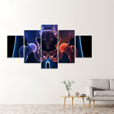 Human Painful Hip Multi Canvas Print Wall Art