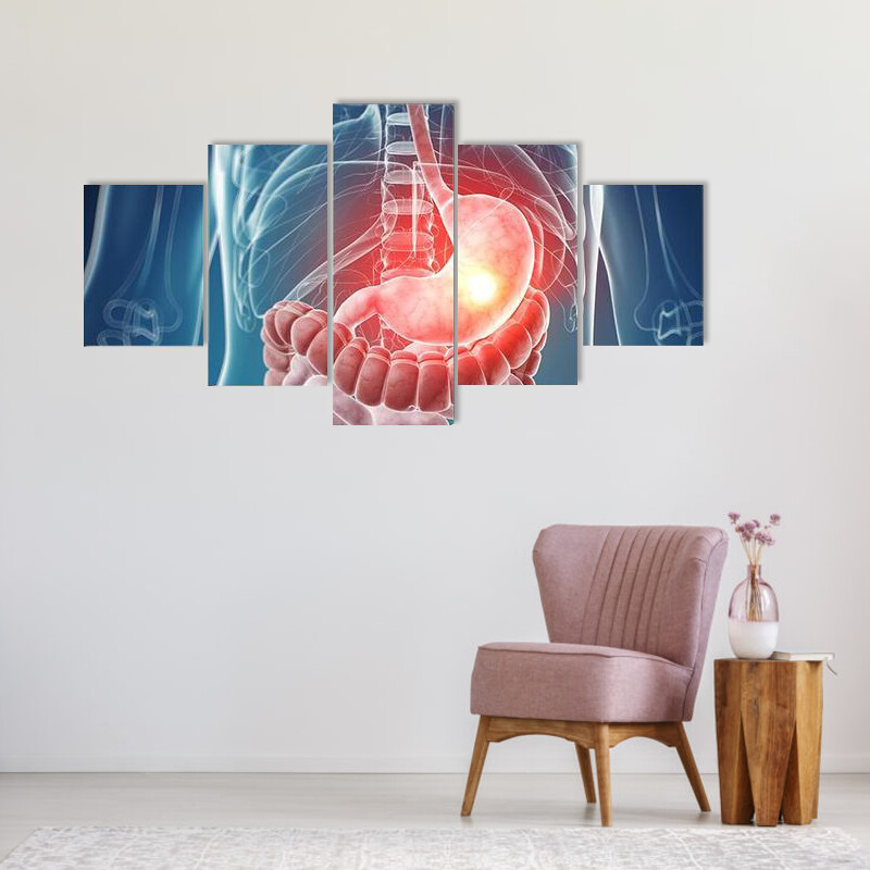 Illustration Of Painful Stomach Multi Canvas Print Wall Art