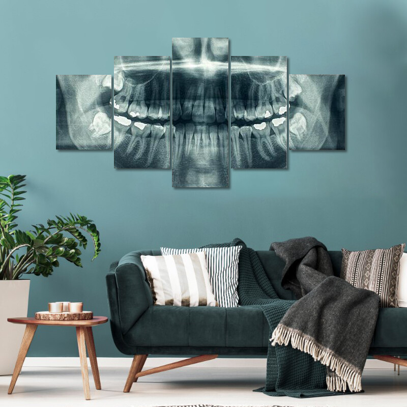 Panorama Of Dental X-Ray Multi Canvas Print Wall Art