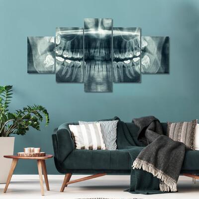 Panorama Of Dental X-Ray Multi Canvas Print Wall Art