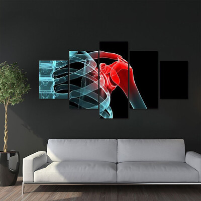 X-Ray Of Painful Shoulder Multi Canvas Print Wall Art