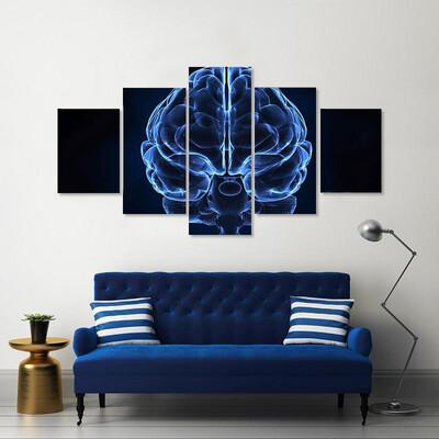 X-Ray Of Human Brain Multi Canvas Print Wall Art