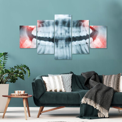 X-Ray Of Teeth And Mouth Multi Canvas Print Wall Art