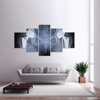 X-Ray Scan Image Of Hip Joints Multi Canvas Print Wall Art