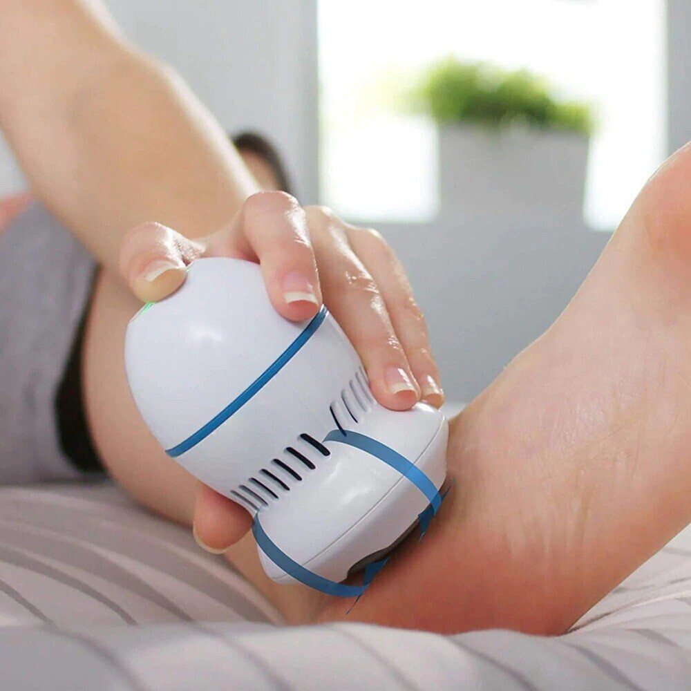 Electric Callus Remover - Feet Foot Pedicure Tool Exfoliation Dead Skin