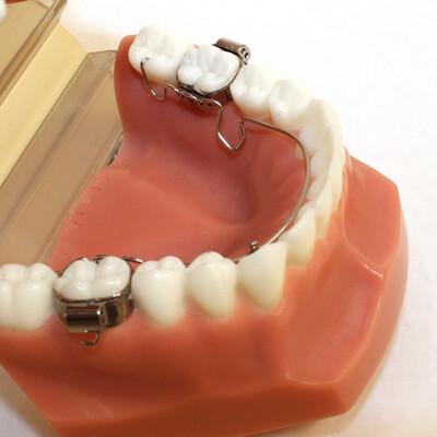 Arco lingual 3D ®