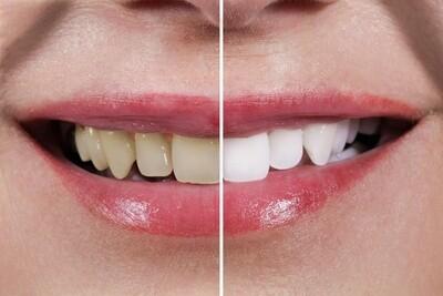 Blanchiment dentaire éclatant