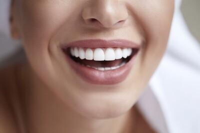 3 Séances de Blanchiment dentaire au laser